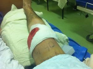 artroskopija koljena